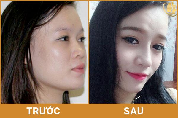 chi-phi-nang-mui-boc-sun-han-quoc-bao-nhieu-tien(6).jpg